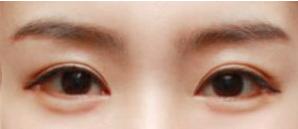 韩国绮林整形外科眼睑下垂技术好