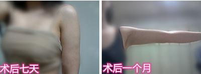 韩国芙莱思医院手臂吸脂效果好恢复快