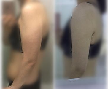 韩国365mc医院手臂吸脂前后对比图