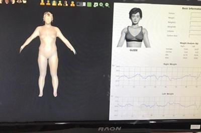 韩国365mc医院会进行脂肪厚度检测