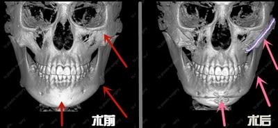 韩国TS医院轮廓手术前后CT对比
