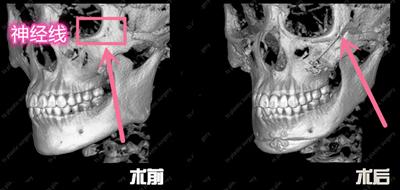 韩国TS整形外科颧骨内推CT展示图