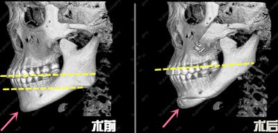 韩国TS整形外科下颌骨手术CT照片