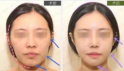 韩国TS整形外科轮廓手术效果好