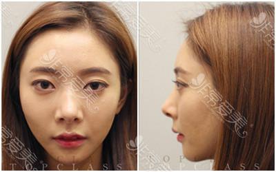 韩国有雅思提升线手术效果