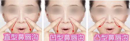 鼻唇沟的常见分类图