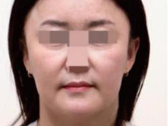 面部脂肪型鼻唇沟参照图