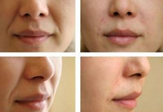 脂肪垫下垂型鼻唇沟示意图