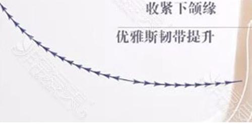 韩国优雅斯PPDO蛋白线
