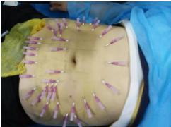 韩国原辰医院黄金埋线提升可用于塑形