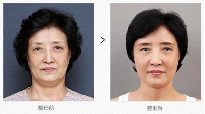 韩国原辰医院面部提升安多泰材料术前术后对比图