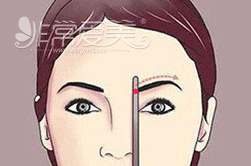 眉弓整形有必要吗