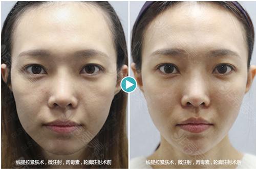 BLS皮肤科肉-毒素注射+轮廓针注射效果对比图