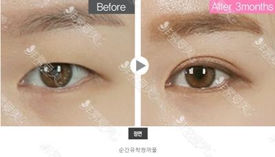 韩国美穗MIHO双眼皮效果展示