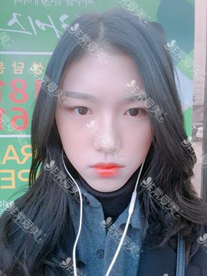 韩国美穗MIHO医院自然粘连法双眼皮案例