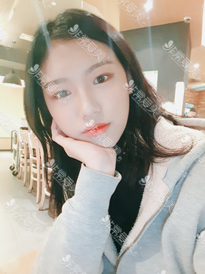 韩国美穗MIHO整形外科双眼皮手术恢复期图片