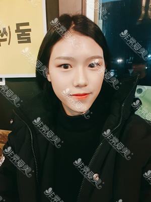 韩国美穗MIHO双眼皮手术20天恢复图
