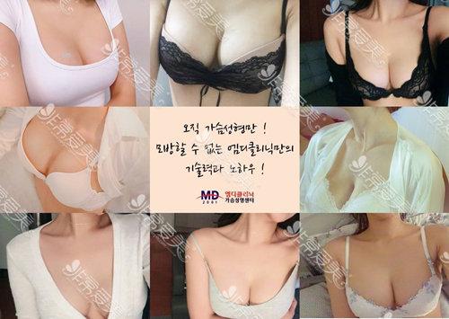 韩国MD医院胸部整形官网案例图