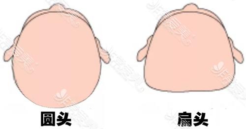 圆头和扁头对比图