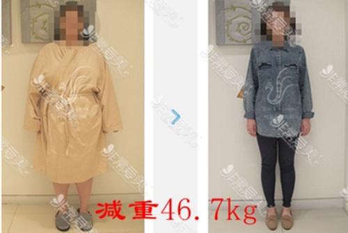 胃束带手术能瘦多少对比图