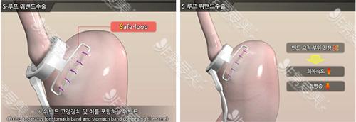 韩国首尔slim外科医院胃束带方法图