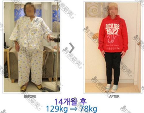 内脏脂肪怎么减有效