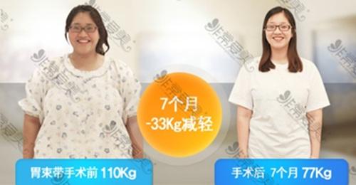 首尔slim外科朴润赞胃束带手术案例