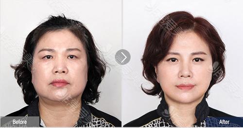 菲斯莱茵皮肤管理前后对比图