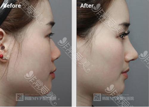 图为韩国mvp整形外科假体隆鼻手术对比案例展示