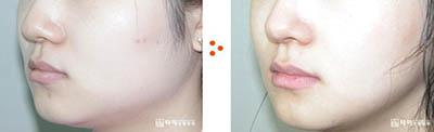 韩国她美整形外科下颌角整形案例图