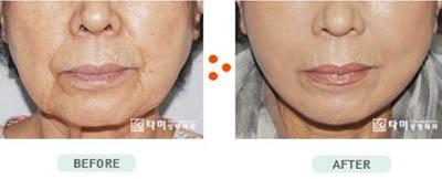 韩国她美整形外科抗衰老案例图