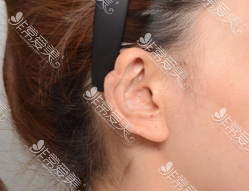 耳轮凹陷术前图