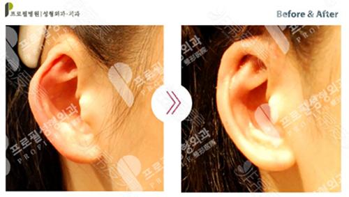 耳轮凹陷修复效果图