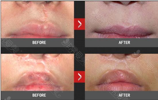 安成烈医院面部疤痕祛疤案例