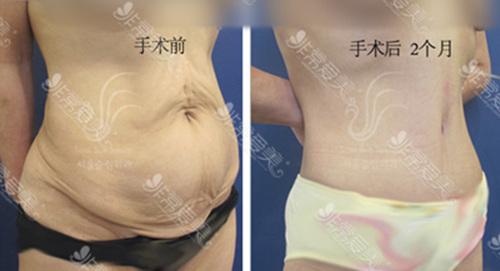 首尔slim外科医院腹部赘皮切除手术图