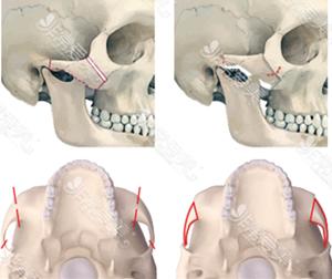 韩国拉菲安整形外科颧骨内推展示图