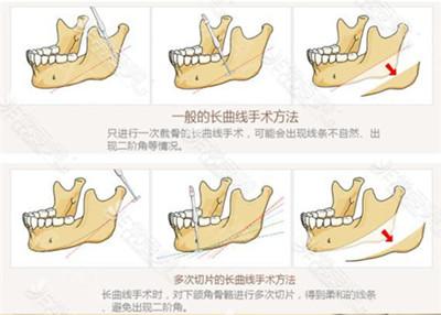 韩国拉菲安整形外科下颌骨术法详解图