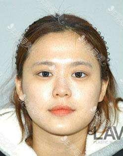 韩国拉菲安整形外科轮廓手术术前实拍