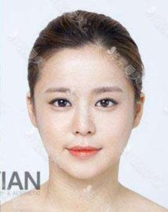 韩国拉菲安整形外科轮廓手术效果好