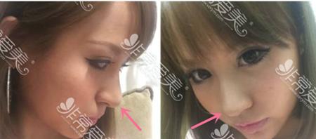 日本酒井伦明隆鼻术前照片