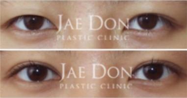 韩国在敦整形外科双眼皮手术好不好