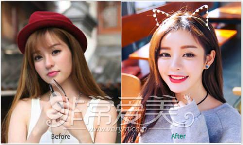 韩国在敦整形外科混血风格双眼皮展示