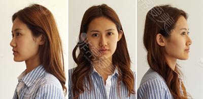 韩国在敦整形外科双眼皮真人案例术前图