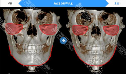 FACE OFF黄金比例分割法CT效果对比图