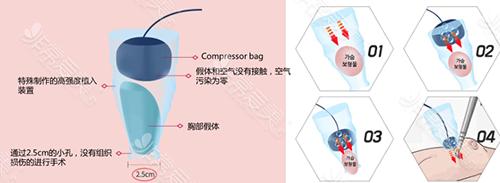 韩国K-beauty整形外科无触碰气压隆胸术法展示
