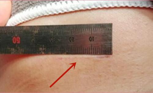 韩国K-beauty整形外科隆胸疤痕很浅