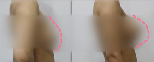 韩国K-beauty整形外科隆胸效果怎么样