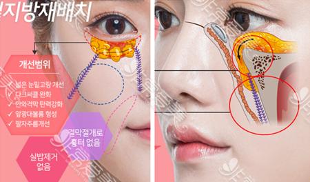 韩国K-beauty整形外科眼底脂肪重置术法展示