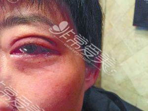 韩国双眼皮失败案例