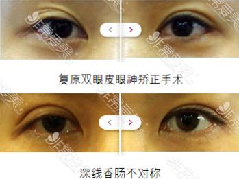 韩国IWANT整形外科双眼皮修复好不好